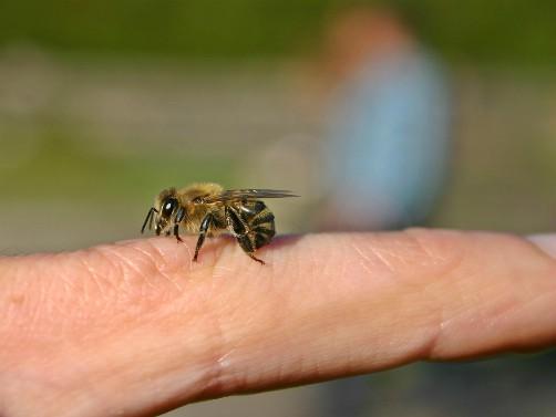 Lečenje pčelinjim proizvodima (Apiterapija)